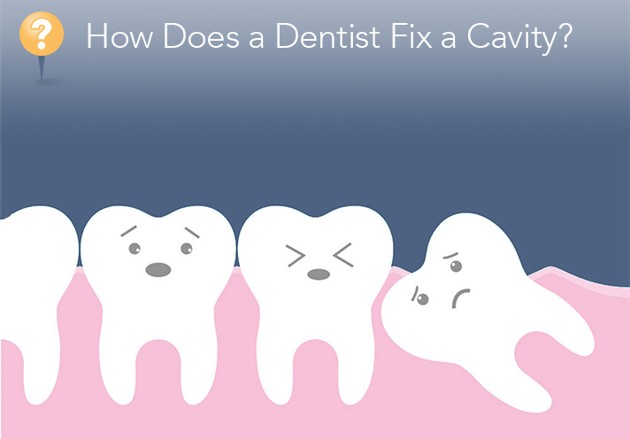 Best Ways To Fix Cavities Naturally