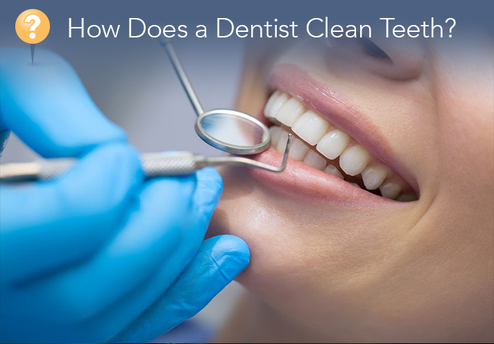 Dental Cleaning – How Does A Dentist Clean Teeth?