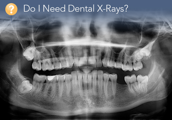 Do I Need Dental X-Rays?