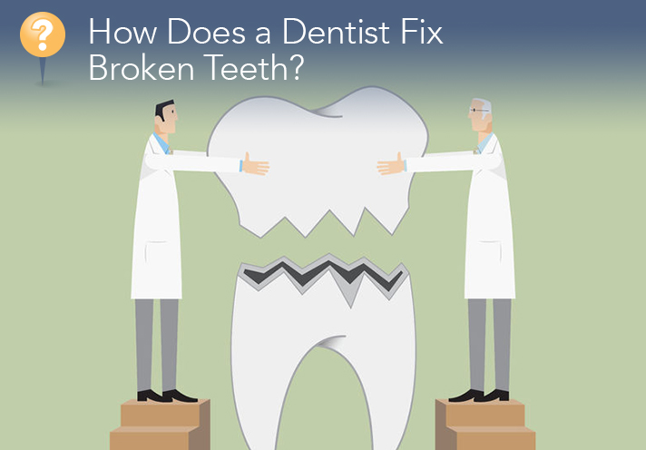 How Does A Dentist Fix Broken Teeth?