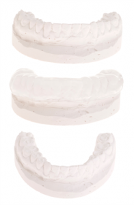 what are dental casts
