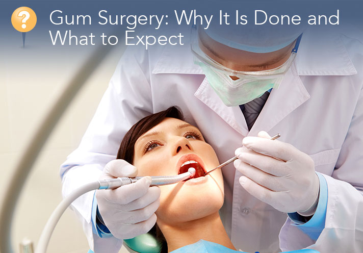 What To Expect With Gum Surgery