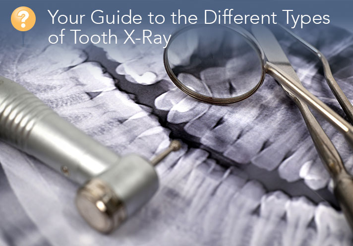 Your Guide To Tooth X-rays