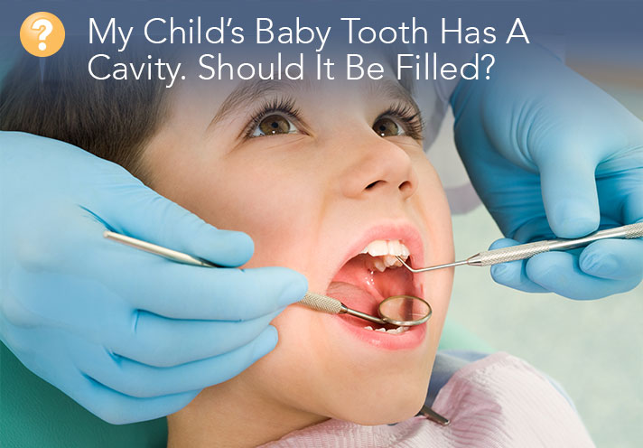 My Child's Baby Tooth Has A Cavity. Should It Be Filled?