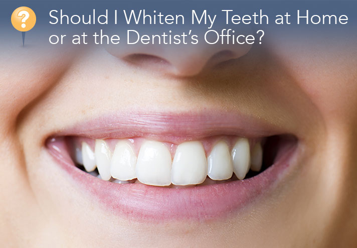 Should I Whiten My Teeth At Home Or At The Dentist's Office?