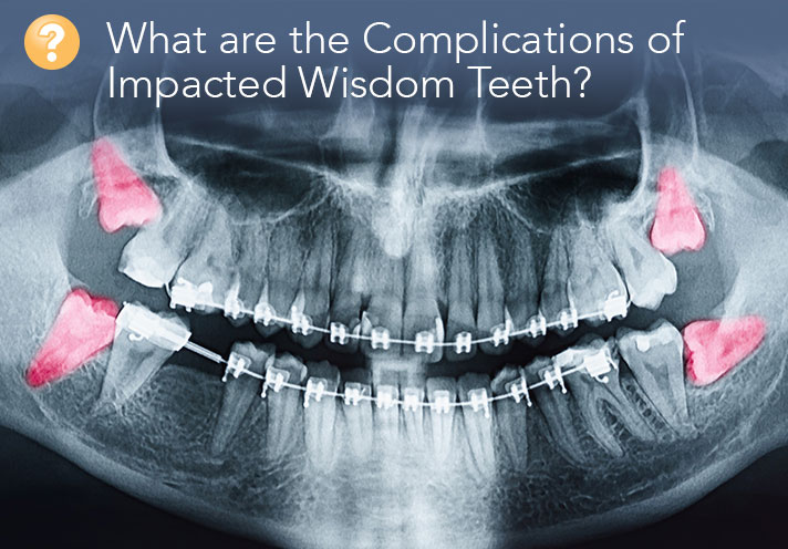 A Guide to the Complications of the Removal of Impacted Wisdom Teeth