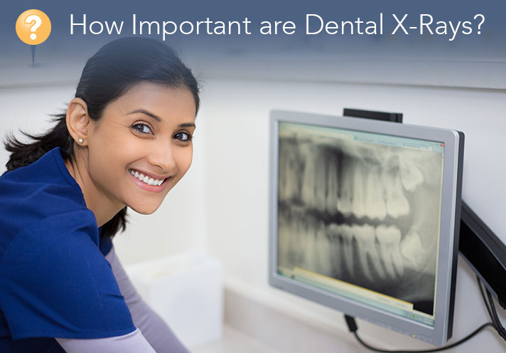 Understanding The Importance Of Dental X-Rays