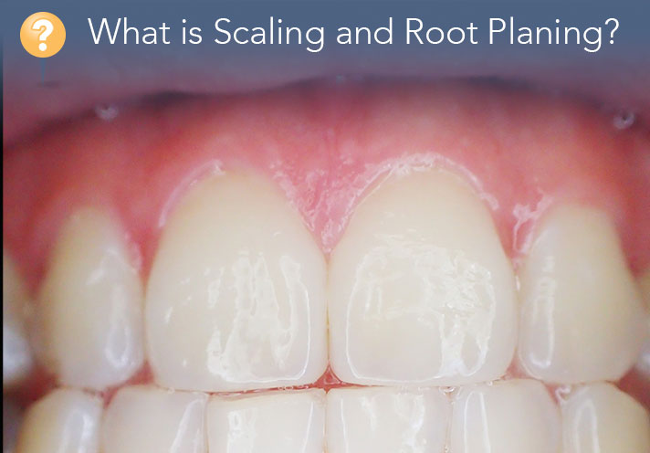 What Is Scaling And Root Planing?: Your Complete Guide