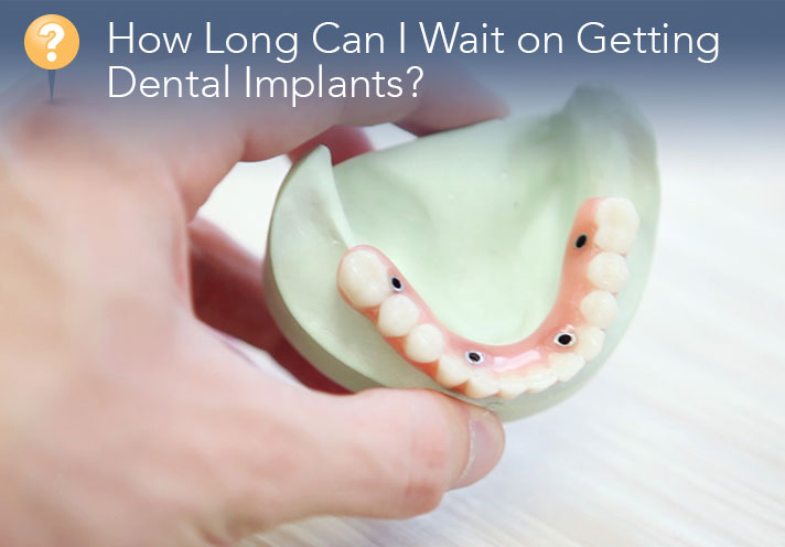 How Long Can I Wait On Getting Dental Implants?